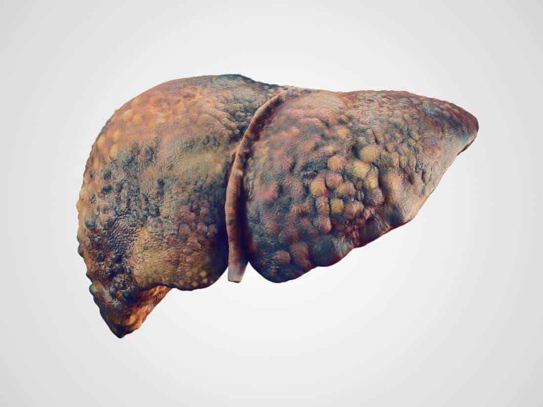 Photo of What if you have a liver disease? Read these 10 signs