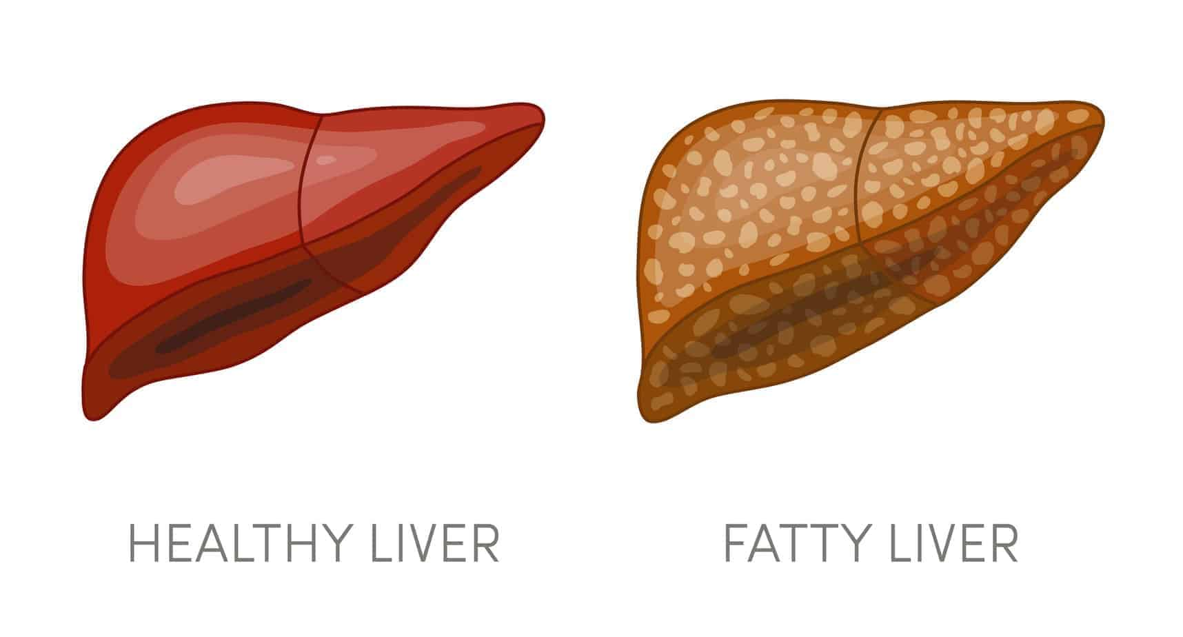 fatty liver diet