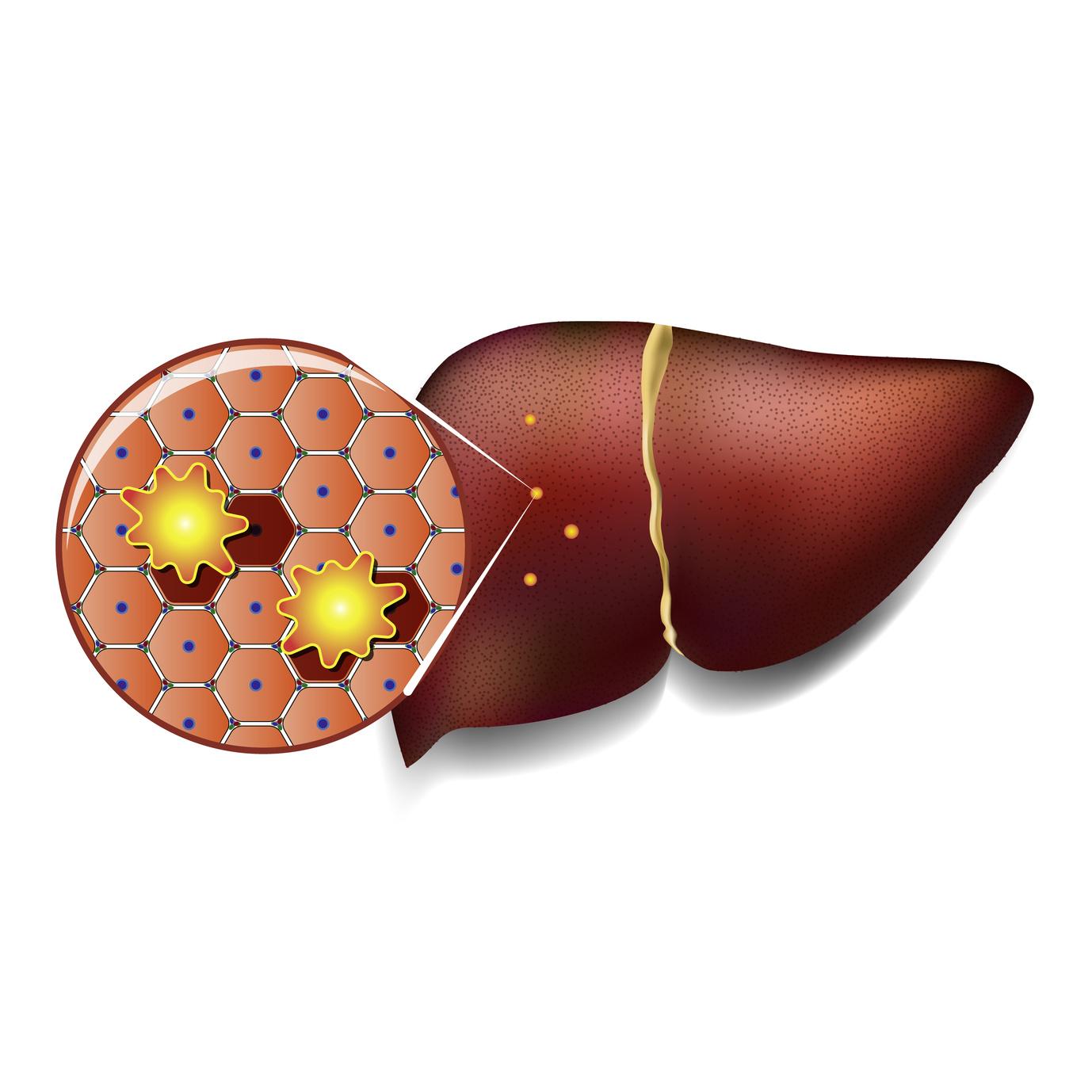 reverse fatty liver