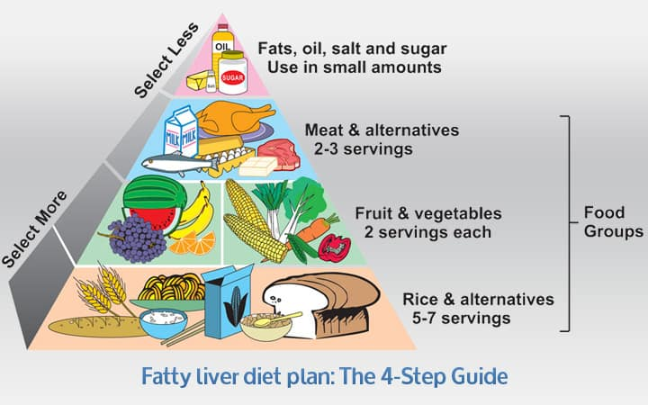 Photo of The 4-Step Fatty Liver Diet Plan