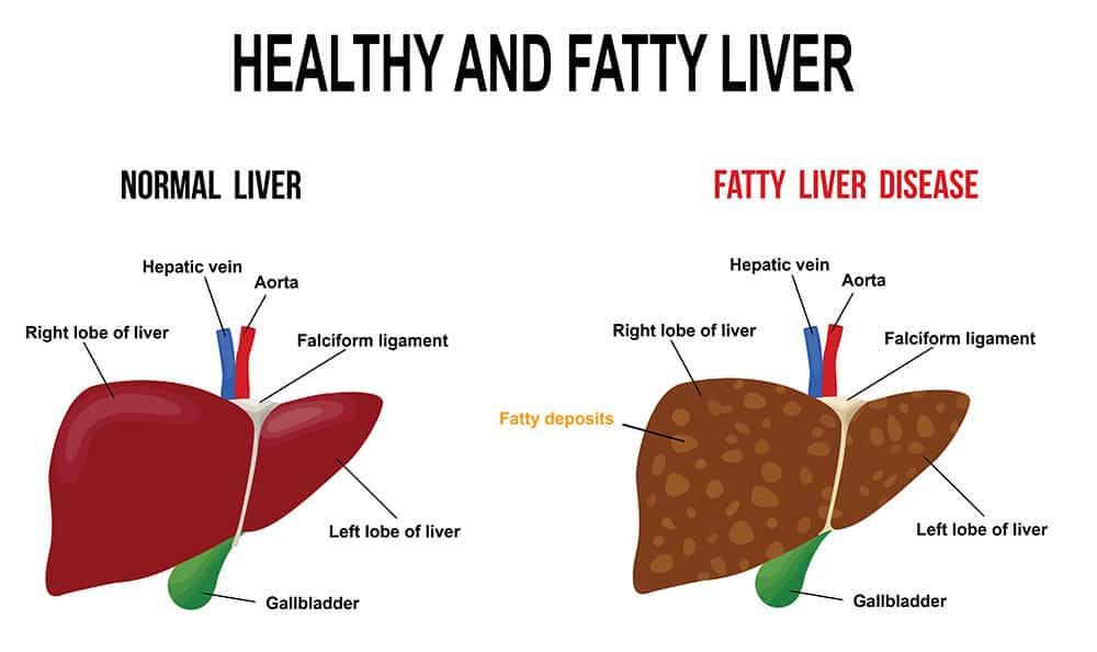 Photo of Fatty Liver Diseases: Causes and diet plans