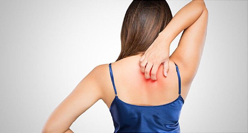 treat itchy skin